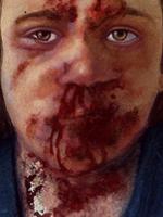 Mein-eigentlicher-Favorit-in-dieser-Auktion-ist-ein-Meisterwerk-von-Gottfried-Helnwein-das-tut-weh-so-genial-ist-das-Teil.