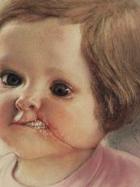Bambini-trafitti-da-Helnwein